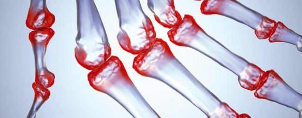 oxymel et arthrite